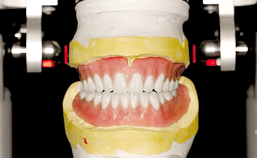 精密似できた義歯