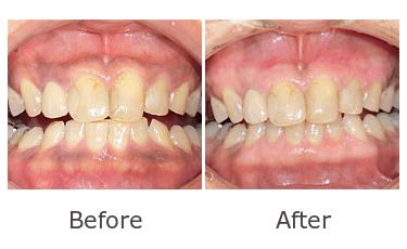 歯茎の変色ビフォーアフター